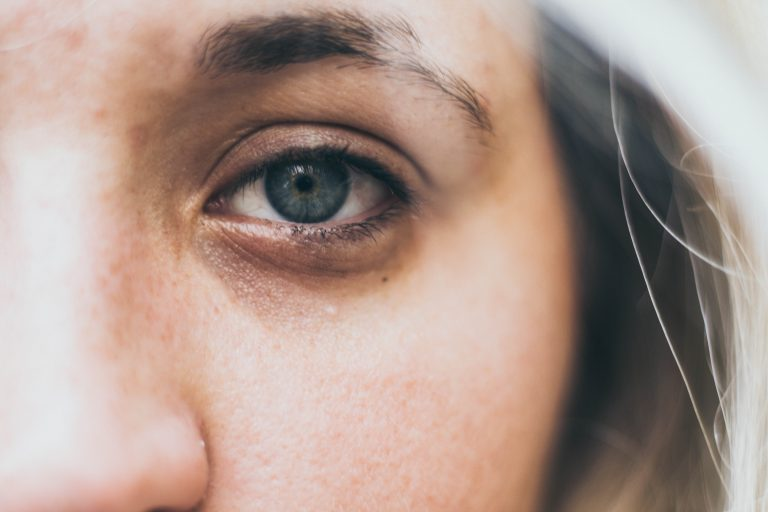 Blonde Woman Eye Close up - Eye overuse is an internal cause of disease