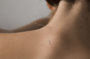 Needling Upper Back points shows how acupuncture works