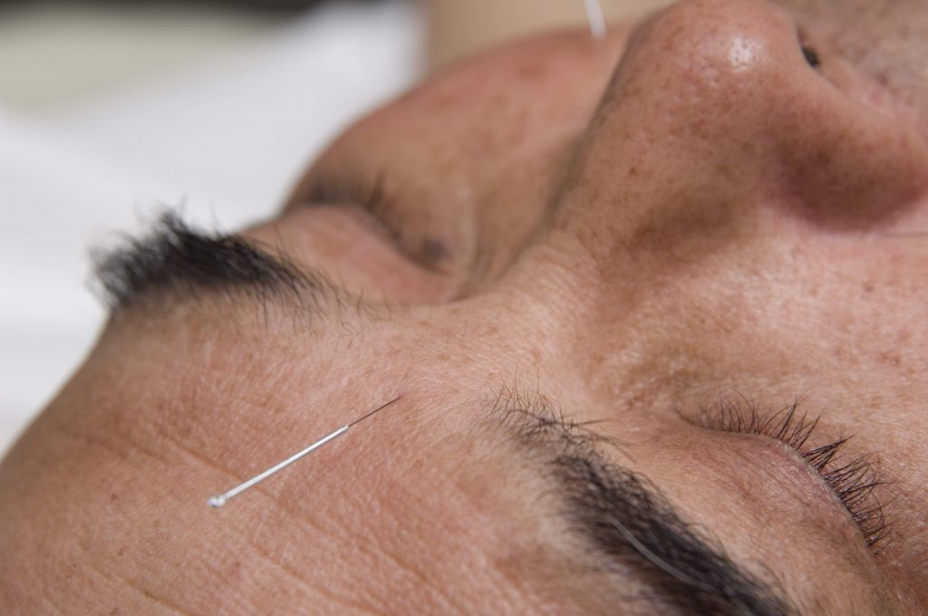Facial Acupuncture, but other points, like Pericardium 6, are also very calming