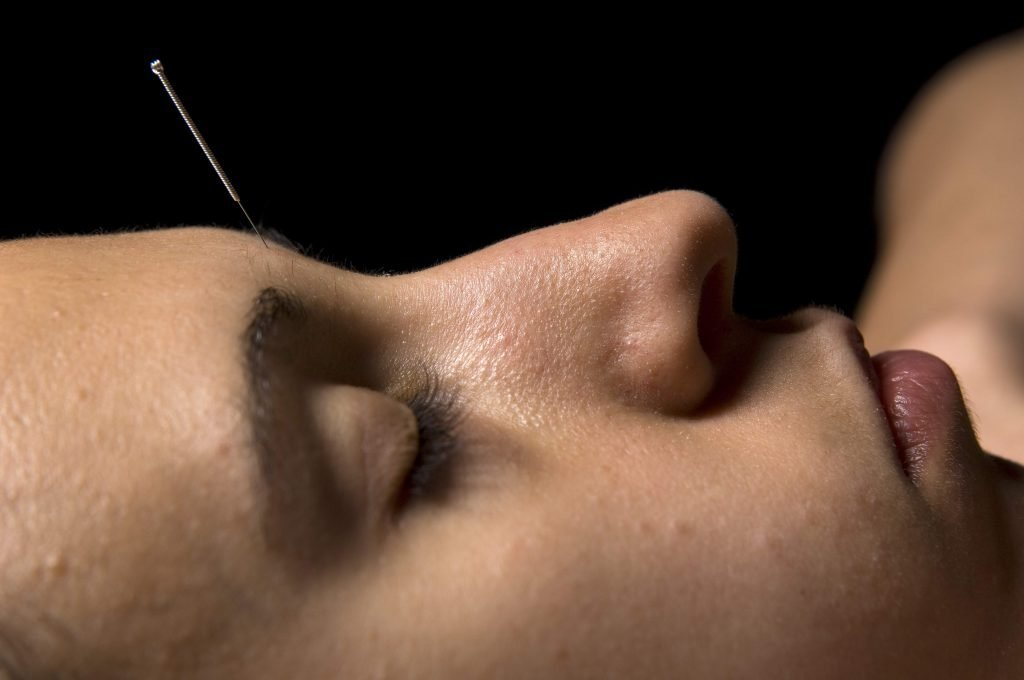 Acupuncture Forehead can help calm Shen and ease snoring