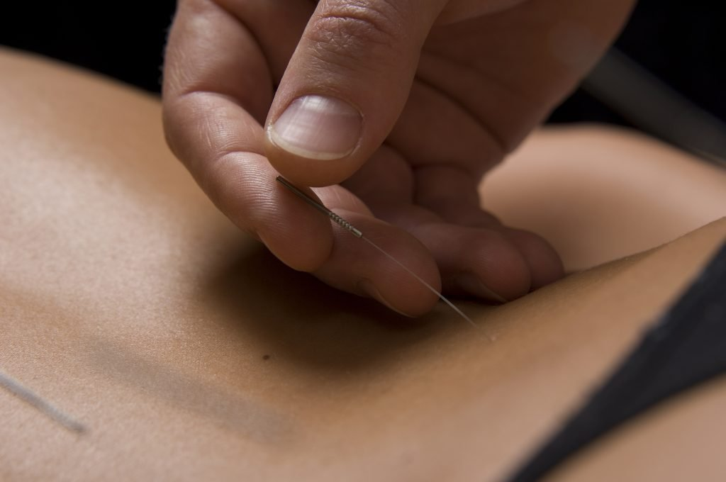 Placing an acupuncture needle in treatment for Stomach Blood stasis