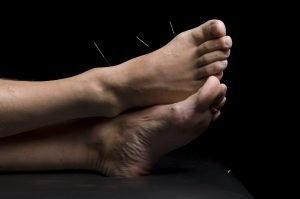 Foot acupunture is often used to treat a syndrome