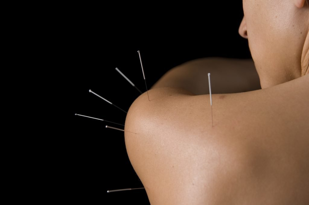 acupuncture medicine
